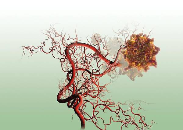 Disease Wall Art - Photograph - Cancer Blood Supply by Claus Lunau