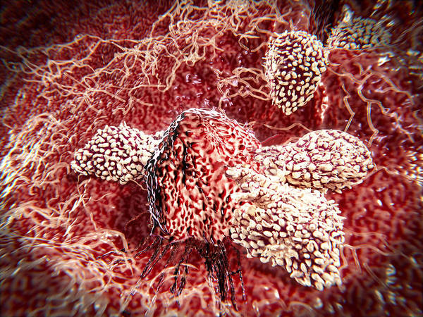 Wall Art - Photograph - Cancer Cell Attacked By Lymphocytes by Juan Gaertner