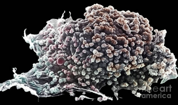 Photograph - Cancer Cell by David M Phillips