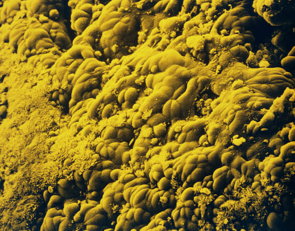 Brain Cancer Wall Art - Photograph - Cancer Cells In Bronchus Of The Lung by Dr. Tony Brain/science Photo Library.