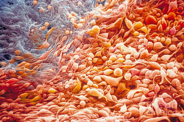 Photograph - Cancer Cells by Ralph C Eagle Jr