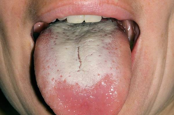Oral Wall Art - Photograph - Candida Infection Of The Tongue by Dr P. Marazzi/science Photo Library