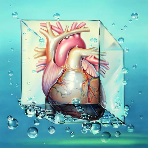 Heart Attack Wall Art - Photograph - Cardiogenic Shock by John Bavosi