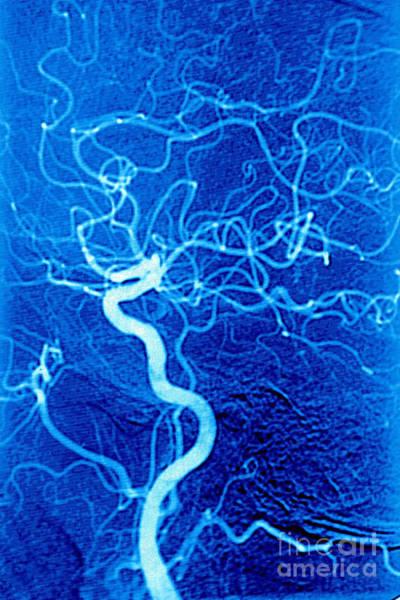 Photograph - Carotid Angiography by James Cavallini