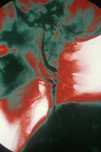 Wall Art - Photograph - Carotid Atherosclerosis by Gca/cnri/science Photo Library