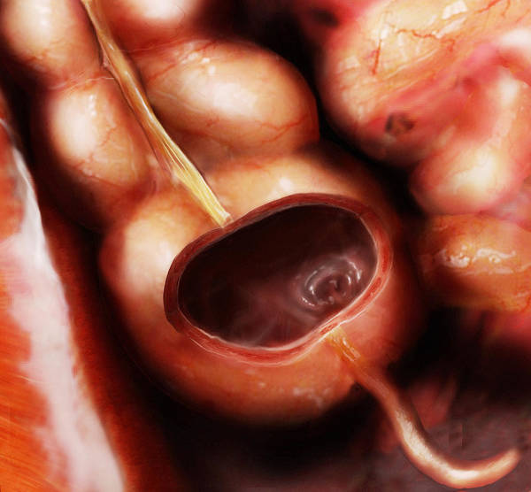 Ceca Wall Art - Photograph - Cecum And Appendix by Anatomical Travelogue