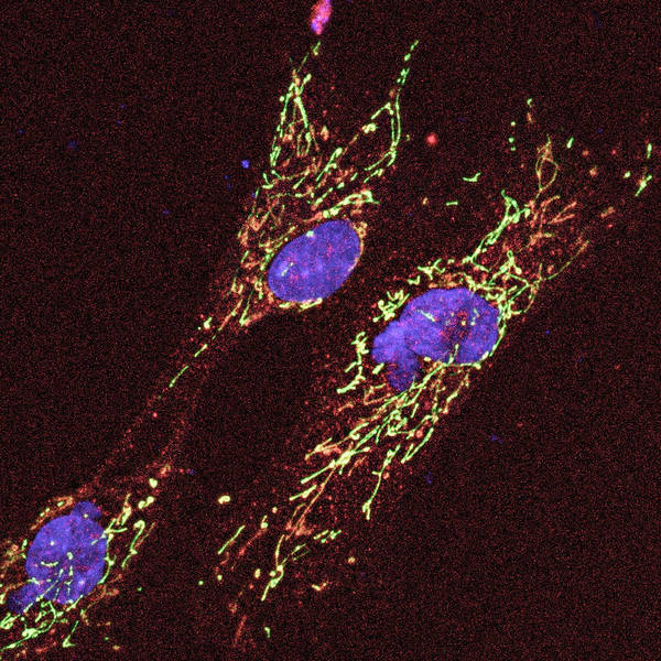 Organelle Photograph - Cell Anatomy by C.j.guerin, Phd, Mrc Toxicology Unit/ Science Photo Library