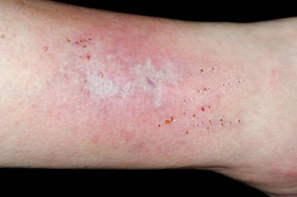 Shin Photograph - Cellulitis On The Shin by Dr P. Marazzi/science Photo Library