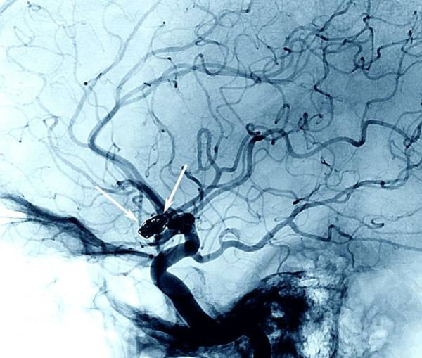 Cerebral Angiogram Photograph - Cerebral Aneurysm Treatment by Zephyr/science Photo Library