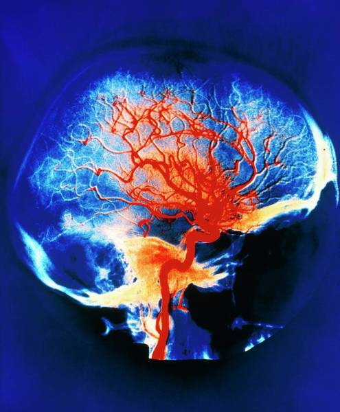 Wall Art - Photograph - Cerebral Arteries by Alain Pol, Ism/science Photo Library