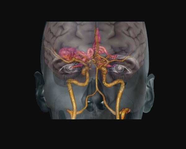 Cerebral Angiogram Photograph - Cerebral Arteriovenous Malformation by Zephyr/science Photo Library