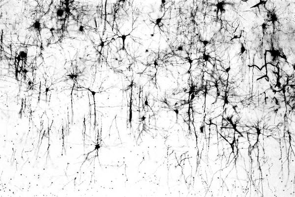 Axon Wall Art - Photograph - Cerebral Cortex Nerve Cells by Secchi-lecaque/roussel-uclaf/cnri/science Photo Library