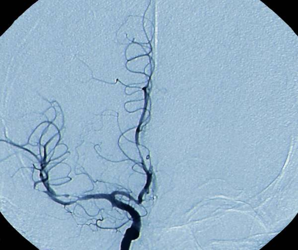 Cerebral Vasculitis Art Print