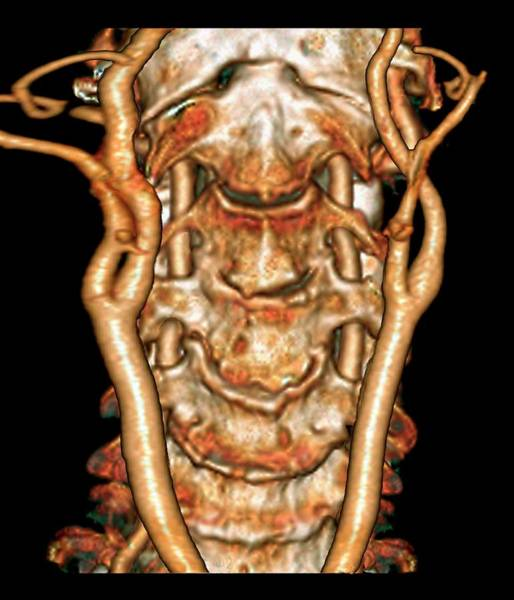 Vertebral Artery Photograph - Cervical Spine And Arteries by Zephyr/science Photo Library