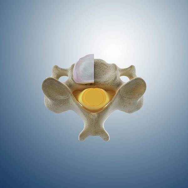 Vertebra Photograph - Cervical Vertebra (c4) by Springer Medizin