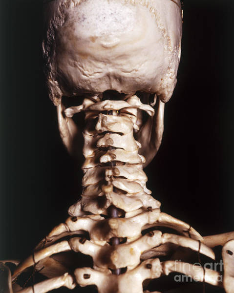 Photograph - Cervical Vertebrae by John Davis and Dorling Kindersley