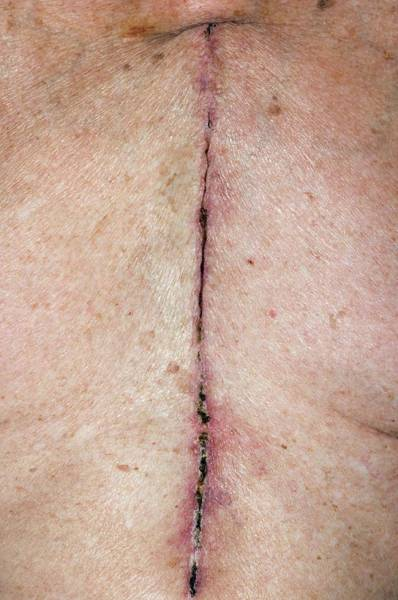 Heal Wall Art - Photograph - Chest Scar After Heart Surgery by Dr P. Marazzi/science Photo Library