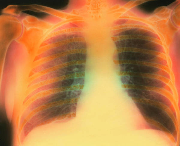Chronic Wall Art - Photograph - Chest X-ray Showing Pulmonary Emphysema by Science Photo Library