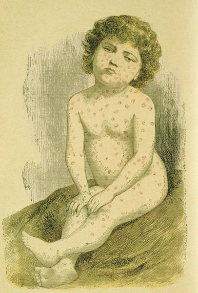 Suffering Wall Art - Photograph - Child With Measles by Universal History Archive/uig