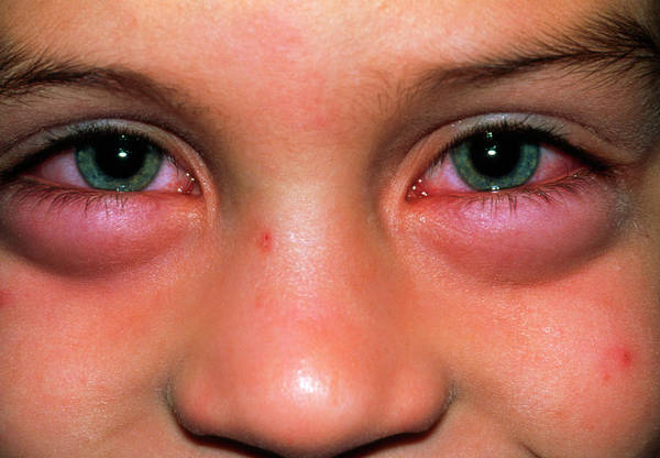 Fever Photograph - Child With Swollen Eyes From An Allergic Reaction by Dr P. Marazzi/science Photo Library