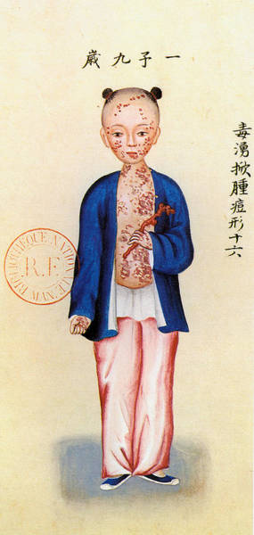 Painting - China Smallpox by Granger