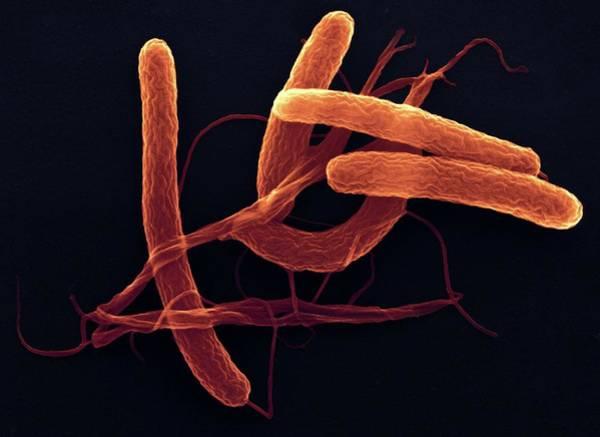 Bacilli Wall Art - Photograph - Cholera Bacteria by Ami Images/dartmouth College - Louisa Howard