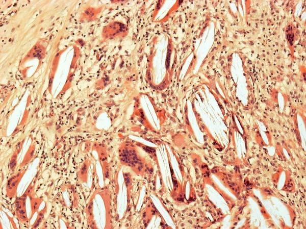 Cholesterol Photograph - Cholesterol Granuloma by Steve Gschmeissner