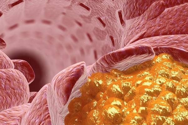 Atherosclerosis Wall Art - Photograph - Cholesterol In A Blood Vessel by Ella Maru Studio / Science Photo Library