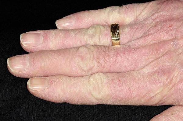 Chronic Wall Art - Photograph - Chronic Eczema On The Hands by Dr P. Marazzi/science Photo Library