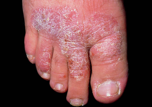 Chronic Wall Art - Photograph - Chronic Plaque Psoriasis On The Foot by Dr H.c.robinson / Science Photo Library