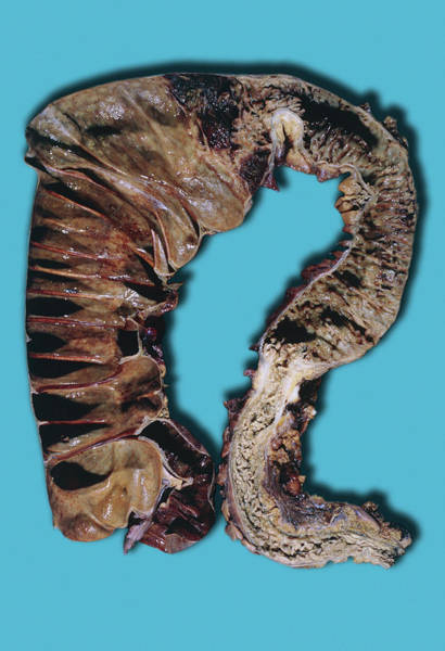 Chronic Wall Art - Photograph - Chronic Ulcerative Colitis by Medimage/science Photo Library