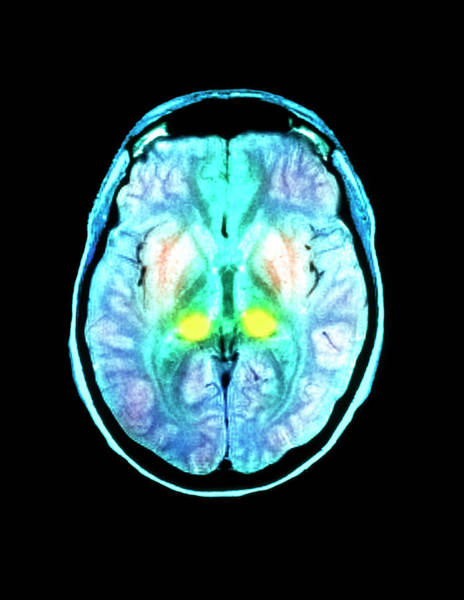 Mri Photograph - Cjd Brain by Simon Fraser/royal Victoria Infirmary, Newcastle Upon Tyne/science Photo Library