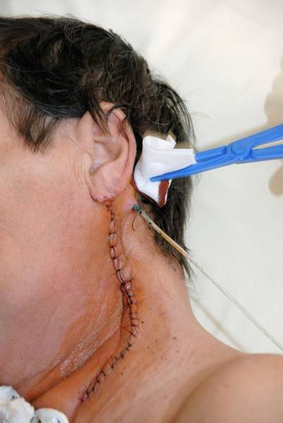 Dressing Photograph - Cleaning Wound Drain by Aj Photo/science Photo Library