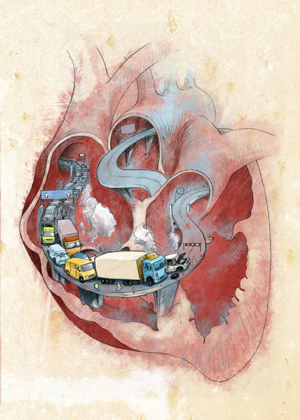 Wall Art - Photograph - Clogged Heart by Fanatic Studio / Science Photo Library