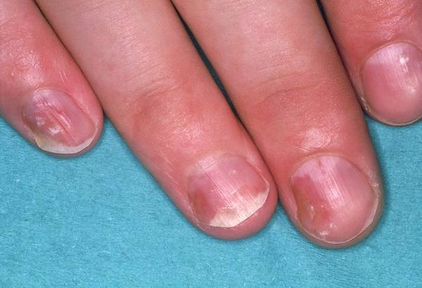 Fingernail Wall Art - Photograph - Close Of Psoriasis Causing Pitting Of Fingernails by Science Photo Library