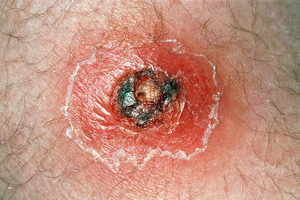 Boil Photograph - Close-up Of A Boil On The Upper Thigh Of A Patient by Science Photo Library