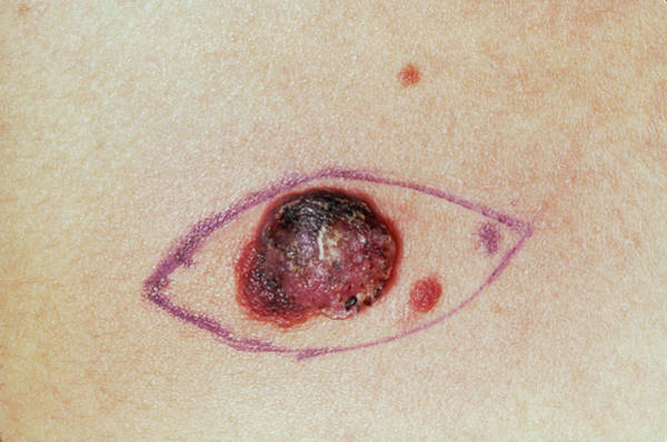 Malignant Wall Art - Photograph - Close Up Of A Malignant Melanoma Before Excision by James Stevenson/science Photo Library