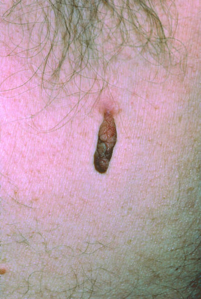 Tag Photograph - Close-up Of A Skin Tag by Dr P. Marazzi/science Photo Library
