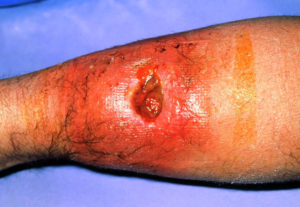 Shin Photograph - Close-up Of An Infected Haematoma On Man's Leg by Dr P. Marazzi/science Photo Library