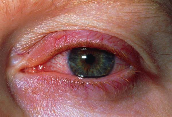 Inflammation Wall Art - Photograph - Close Up Of Iritis Seen In Eye Of 30 Year Old Man by Dr P. Marazzi/science Photo Library