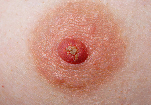 Nipples Wall Art - Photograph - Close-up Of Woman's Nipple Showing A Discharge by Dr H.c.robinson / Science Photo Library