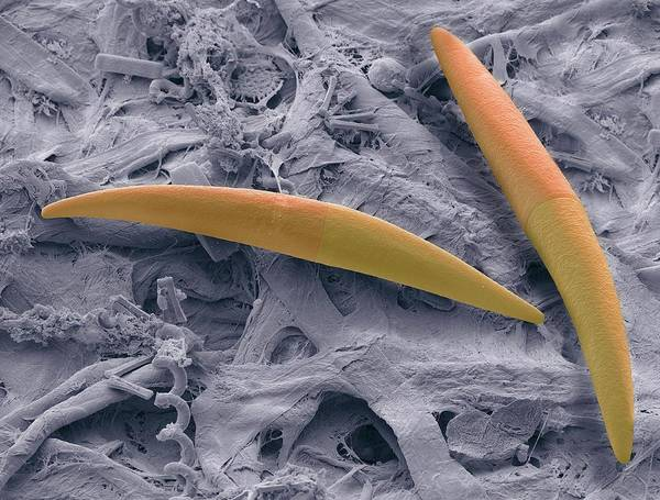 Aquatic Plants Photograph - Closterium Desmid by Steve Gschmeissner