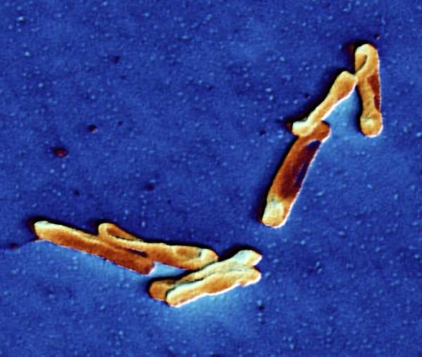 Neurobiology Photograph - Clostridium Difficile Bacteria by Alfred Pasieka