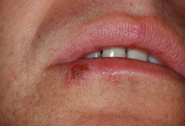 Lips Photograph - Cold Sore by Cnri/science Photo Library