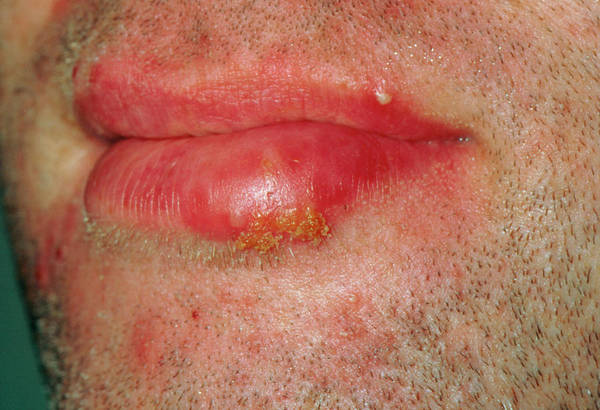 Lips Photograph - Cold Sore (herpes Simplex Lesion) On Patient's Lip by Dr P. Marazzi/science Photo Library