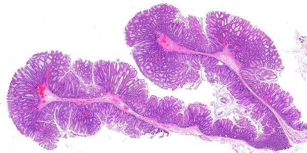 Microscopy Photograph - Colon Polyps by Microscape