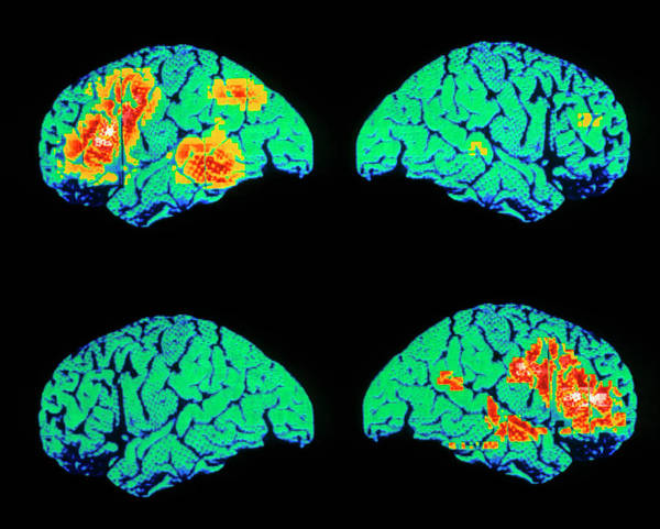 Language Photograph - Colour Pet Scan Of Language Areas Of The Brain by Wellcome Dept. Of Cognitive Neurology/ Science Photo Library