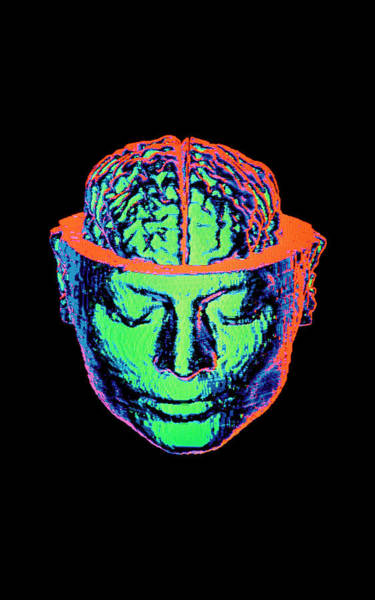 Cts Photograph - Coloured 3-d Ct Scan Of Opened Head With Brain by Gjlp/science Photo Library