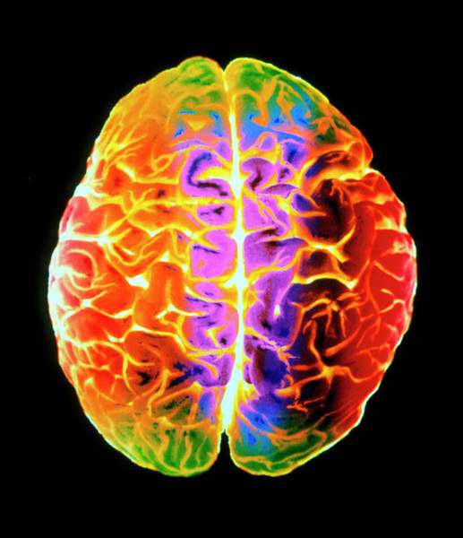 Mri Photograph - Coloured 3-d Mri Scan Of A Brain Seen From Above by Gjlp/science Photo Library