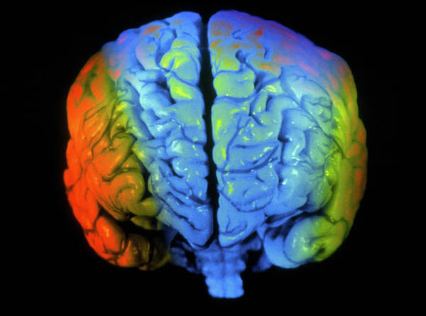 Mri Photograph - Coloured 3-d Mri Scan Of A Brain Seen From Front by Gjlp/science Photo Library